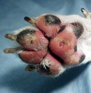 כוויות בכפות הרגליים, צילום להמחשה בלבד